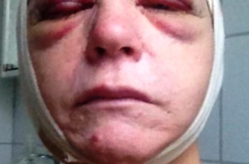 Une femme suédoise sauvagement agressée à cause de son Etoile de David.