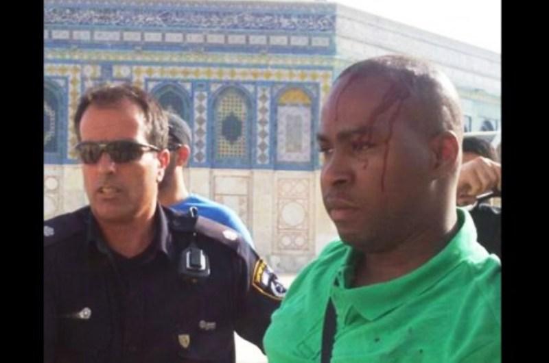 [Vidéo] – Mont du Temple : attaque du touriste français par des arabes locaux.