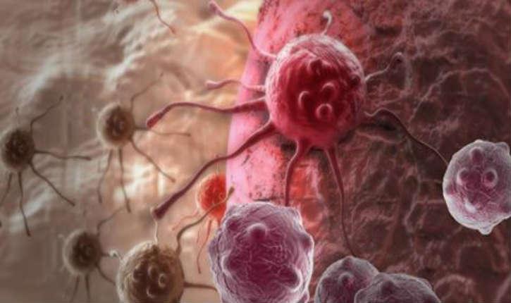 Israël : un nouveau laser hyper-puissant pour lutter contre le cancer à la Faculté d'Ingénierie de l'Université de Tel-Aviv
