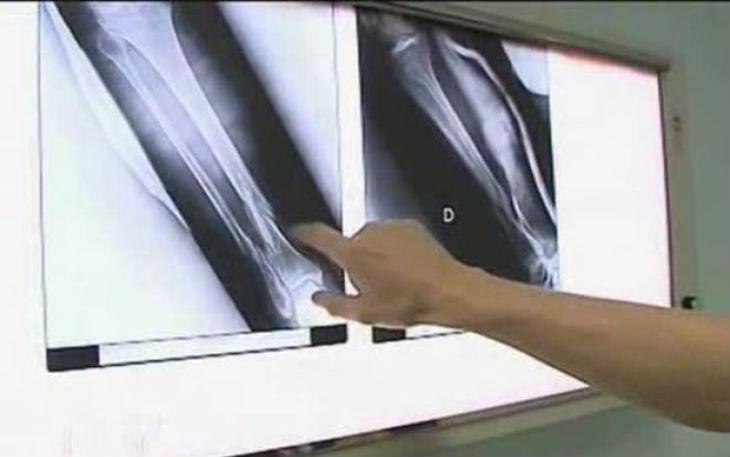 Israël, innovation: RegeneCure invente BoneCure, une membrane qui permet une régénération osseuse