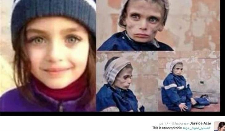 Réseaux sociaux : La photo de la «fillette syrienne affamée» était un fake