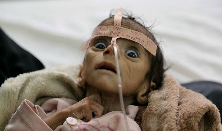 Le Yémen ce n'est pas Gaza et ses enfants n'ont pas la chance d'être Palestiniens, ils n'intéressent personne !