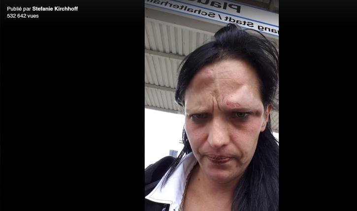 [video] une allemande au visage tuméfiée après une agression de migrants s'adresse à Merkel
