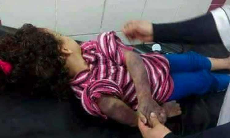 [image difficile] Israel: une fille musulmane de 6 ans battue à mort sous les coups de son père