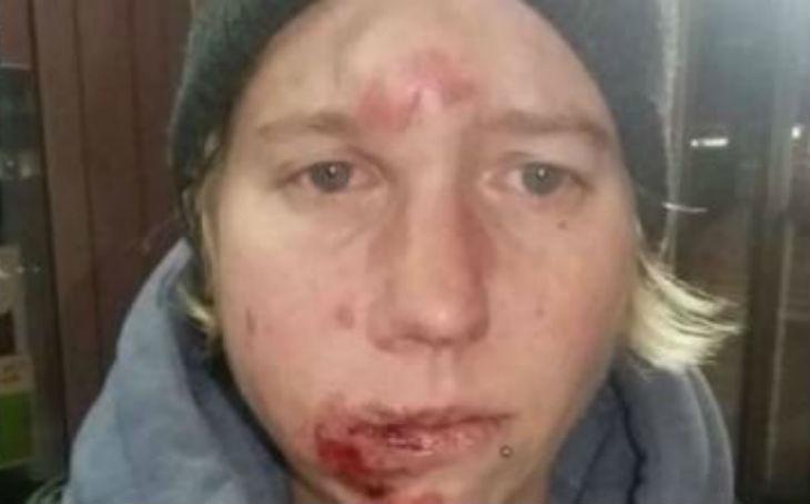 Ferrara, Italie : une femme tabassée par 5 migrants, la Ligue du Nord appelle à la création de patrouilles pour assurer la sécurité