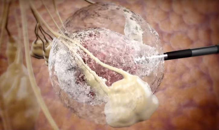 [Vidéo] Israël : un nouveau traitement du cancer testé avec succès en utilisant la cryothérapie