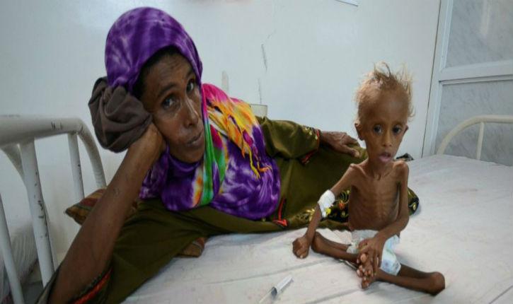 Ici ce n'est pas Gaza, mais le Yémen où un enfant meurt toutes les 10 minutes