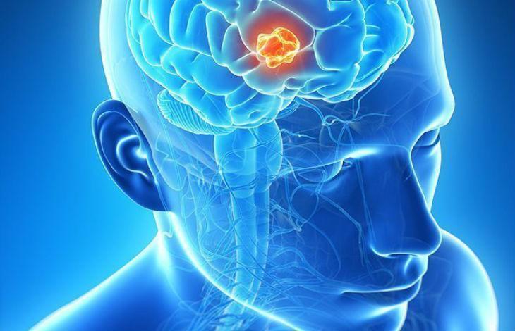 Un nouveau traitement développé par des chercheurs israéliens pourra guérir le cancerdu cerveau