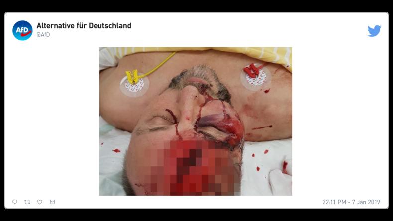 Allemagne : Frank Magnitz, député national et chef du parti l'AfD, frappé presqu'à mort lors d'une agression politique (PHOTO CHOC)