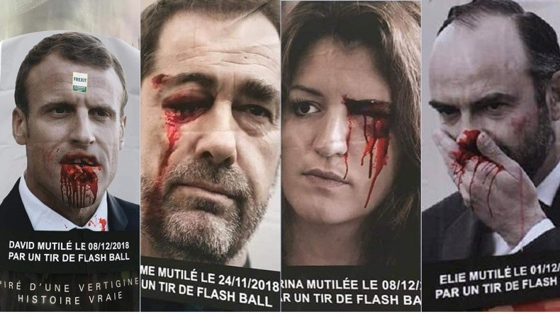 Une campagne d'affichage choc en soutien pour les Gilets jaunes mutilés (PHOTOS)