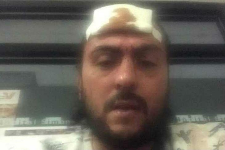 Saint-Brice : un jeune Juif attaqué attaqué à coup de pierres et de gaz lacrymogène par deux Maghrébins