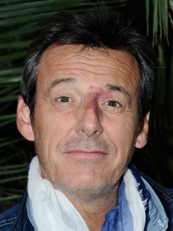Quand l'animateur TV Jean-Luc Reichmann déclarait : « J'espère que les youpins ne m'en voudront pas »
