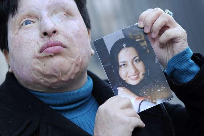 Deux musulmanes attaquées à l'acide dans un restaurant de couscous à Marseillan, dans le sud de la France