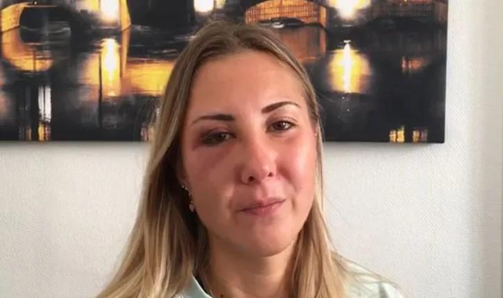 [Vidéo] Strasbourg : une étudiante strasbourgeoise insultée et frappée au visage par trois racailles, parce qu'elle portait une jupe