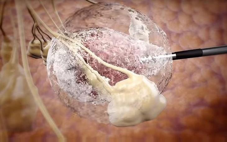 Israël: un traitement révolutionnaire pour soigner le cancer du sein sans chirurgie par simple congélation de la tumeur, mais aussi les cancers des poumons et du rein (Vidéo)